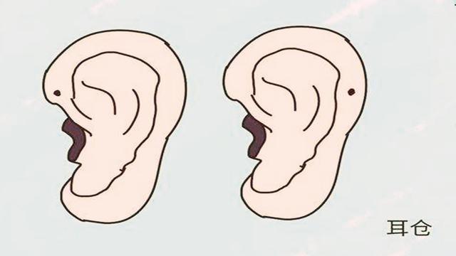 耳仓内部结构图片