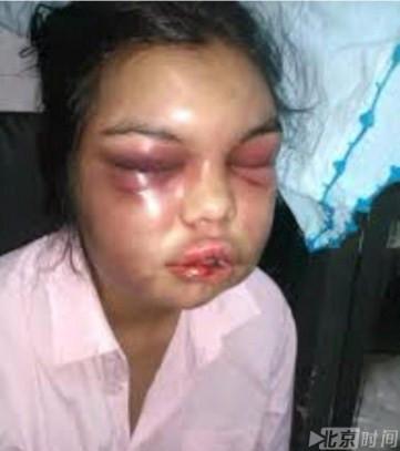 妻子照片被点赞一次 丈夫就殴打她殴打一次