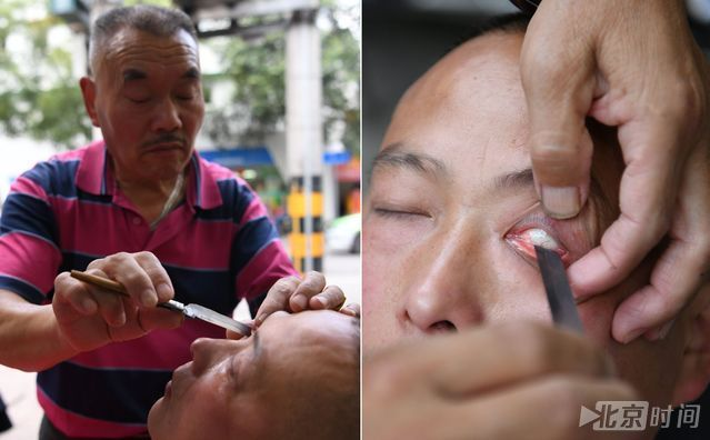 六旬老人用刀片给人洗眼睛 称40年没出过差错 - 周公乐 - xinhua8848 的博客